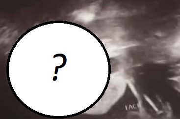 Na zdjęciu USG kobieta zobaczyła diabła? Sam zobacz!